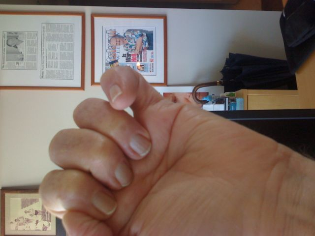 finger-disfigured-10-31-08.jpg