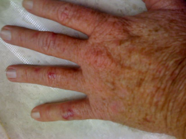finger-scarring-10-31-08.jpg